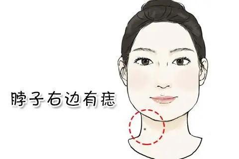 脖子有胎记是什么意思  脖子有痣命好不好